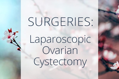 About Laparoscopic Ovarian Cystectomy, Menopause Center Los Angeles