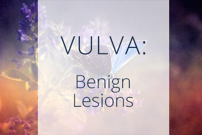 Vulva, Benign Lesions, Menopause Center Los Angeles