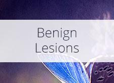 Benign Lesions