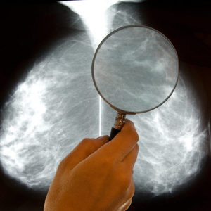 Detecting Breast Cancer, Menopause Center Los Angeles