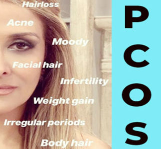 What you need to know about PCOS: symptoms and treatment