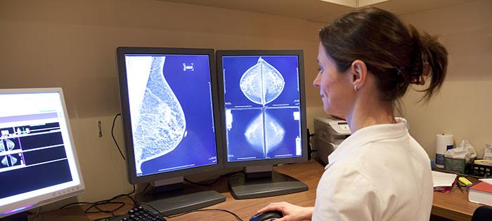 3D vs. 2D Mammogram