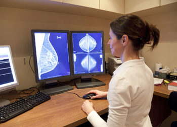 Why 3D mammograms and diagnosing breast cancer