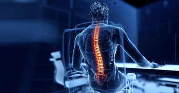 Health Hazards of Sitting: Osteoporosis and Heart Disease?