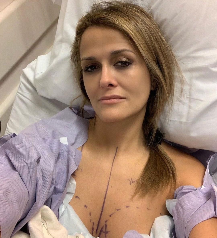 Dr. Aliabadi Mastectomy Story