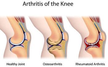 Examples of knee arthritis