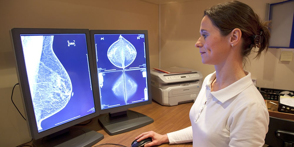 Doctor looking at mammogram