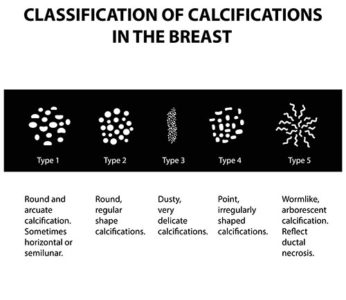 Examples of Breast Calcifications