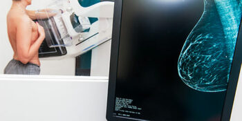 Mammograms Plummet by 22 million During Pandemic. This is terrible news!