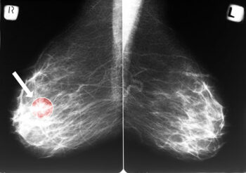 Mammogram image with cancer circled