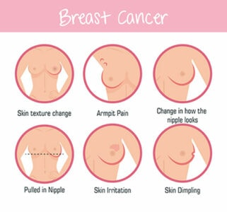 Illustration of breast cancer symtpoms. Text reads: Breast Cancer. Skin texture change. Armpit pain. Change in how the nipple looks. Pulled in Nipple. Skin irritation. Skin dimpling.