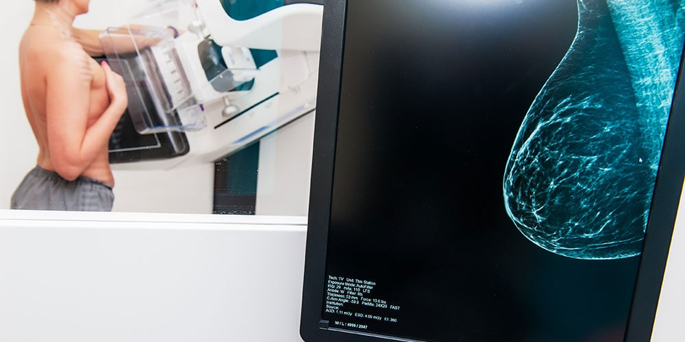 Close up of a mammogram scan with woman receiving mammogram in background